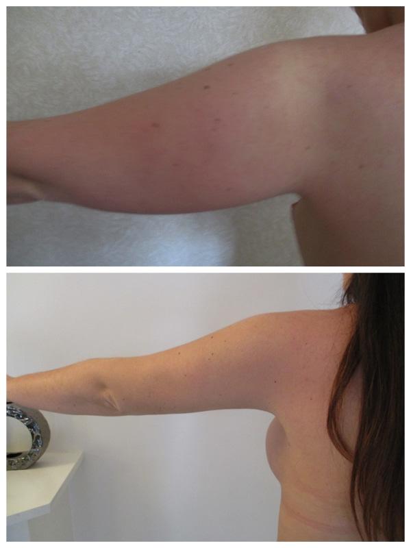 Autre résultat de lipoaspiration des bras: la retraction cutanée a permis d'éviter le lifting des bras et donc la cicatrice