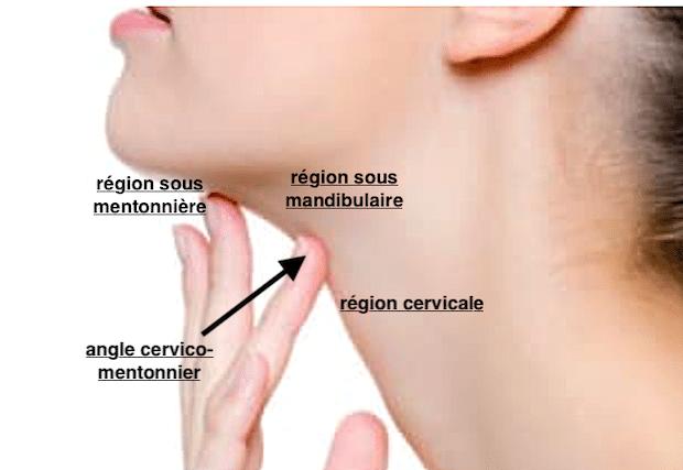 Régions du cou pouvant être traitées par liposuccion