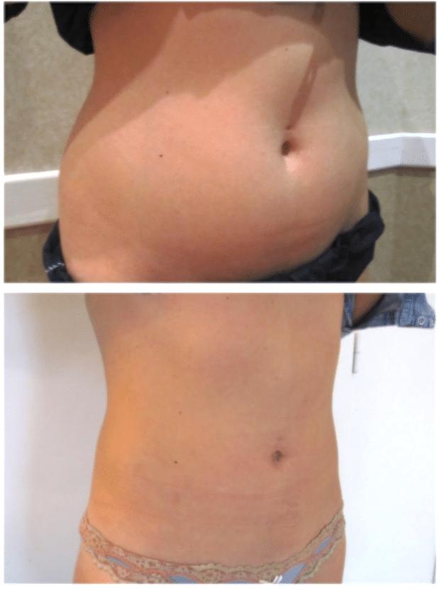 Résultat d'une liposuccion du ventre chez une femme