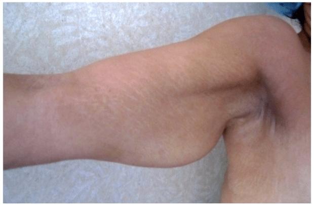 Excédent cutanée à la face interne du bras droit faisant suite à une perte de poids importante (amaigrissement de 54 kg)