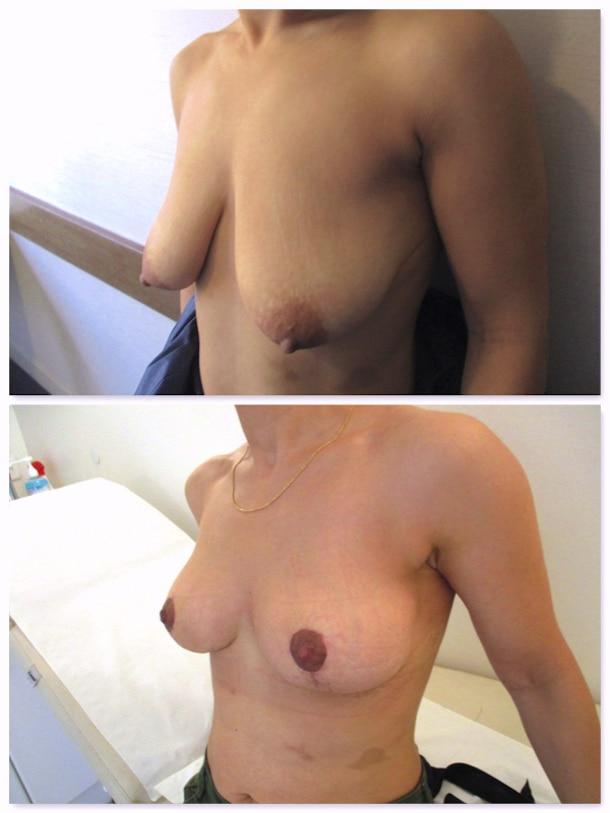 Résultat avant-après à 3 semaines d'une opération de correction de ptose