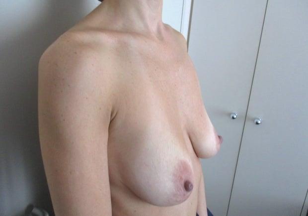 Exemple de poitrine tombante s'accompagnant d'une volume mammaire convenable (bonnet C)