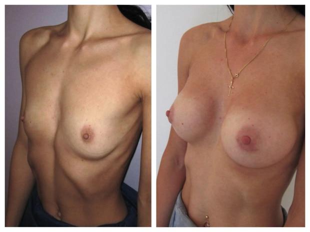 Avant-après: agénésie traitée par implants mammaires