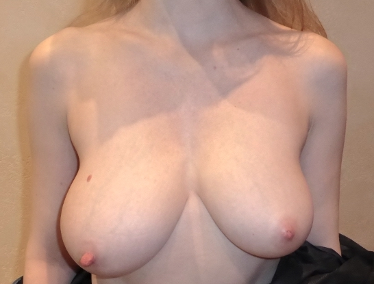 Exemple d'hypertrophie mammaire s'accompagnant d'une nette asymétrie