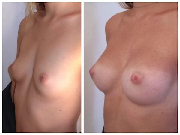 Exemple d'hypoplasie sévère associée à une malformation du thorax traitée par implants