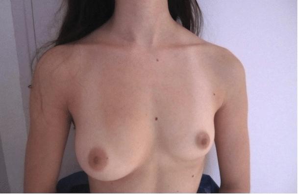 Asymétrie mammaire majeure dont le traitement par implants mammaires pourra être prise en charge par la sécurité sociale