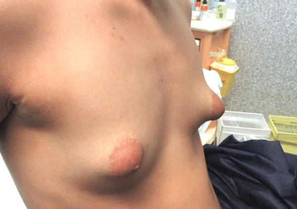 Exemple de pose d'implants prise en charge par l'assurance maladie: malformation (poitrine tubéreuse)