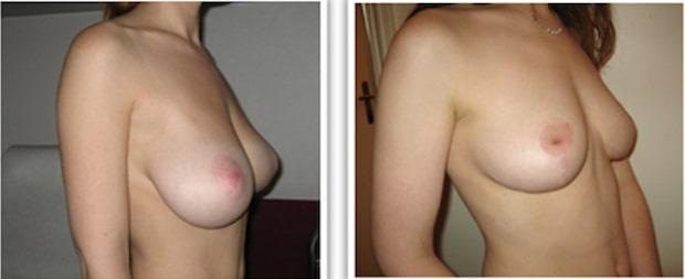 Réduction mammaire dont le prix a été pris en charge passant d'un bonnet D à un bonnet B