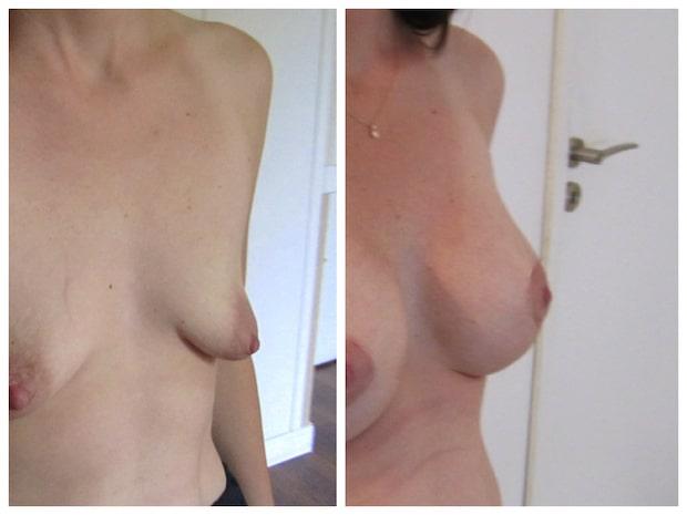 Avant-après: hypotrophie avec ptose corrigée par implants et plastie verticale