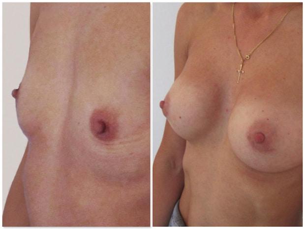Hypotrophie ou hypoplasie mammaire bilatérale sévère traitée par prothèses
