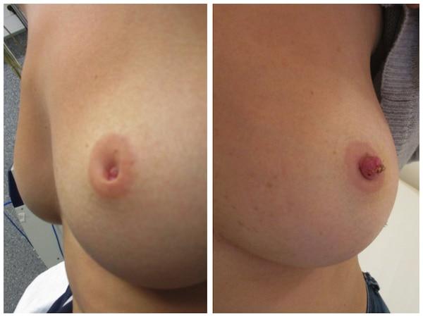 Résultats à 3 jours d'une opération de mamelons ombiliqués prise en charge