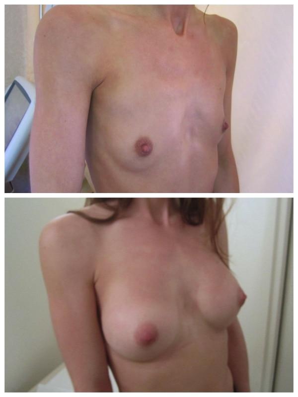 Avant-après: chirurgie réparatrice d'une hypotrophie mammaire sévère par implants ronds disposés en Dual Plan (260cc). L'intervention est prise en charge par l'Assurance Maladie.