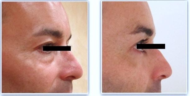 Résultat avant/après blepharoplastie inférieure chez un homme par voie conjonctivale (sans cicatrice) traitant les poches graisseuses