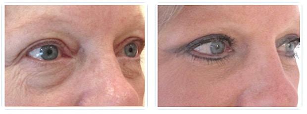 Résultat d'une chirurgie esthétique des paupières: blépharoplastie supérieure et inférieure permettant un rajeunissement et un regard naturel
