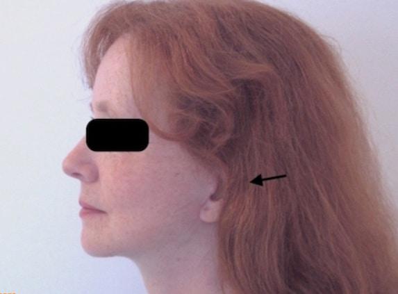 Lifting du visage et du cou à cicatrices courtes et fines