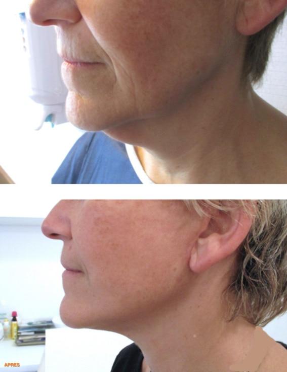 Résultat d'un lifting du bas du visage (cervico-jugal) traitant les joues, l'ovale (les bajoues) et le cou avec lipoaspiration du cou et des bajoues