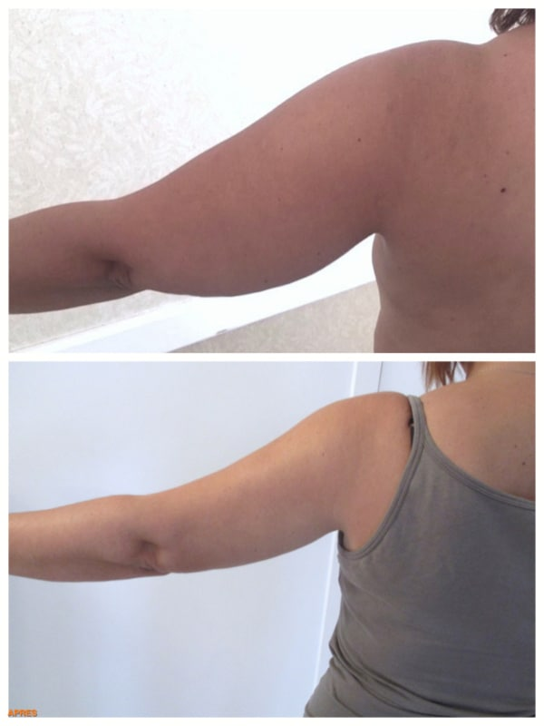 Résultat avant-après d'une chirurgie esthétique des bras par lipoaspiration