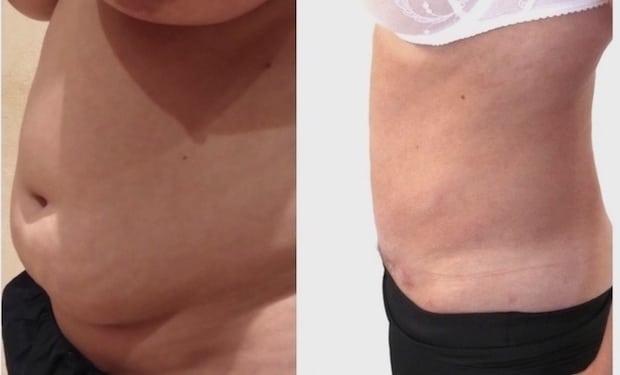 Résultat avant/après d'une chirurgie esthétique du ventre par plastie abdominale avec lipoaspiration