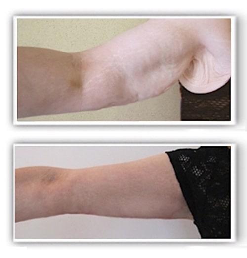 Résultat d'une chirurgie réparatrice des bras par lifting après amaigrissement