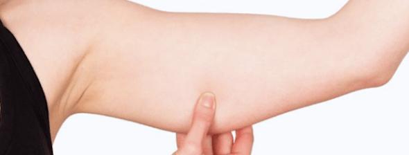zones anatomiques pouvant etre traitées par une chirurgie esthétique des bras