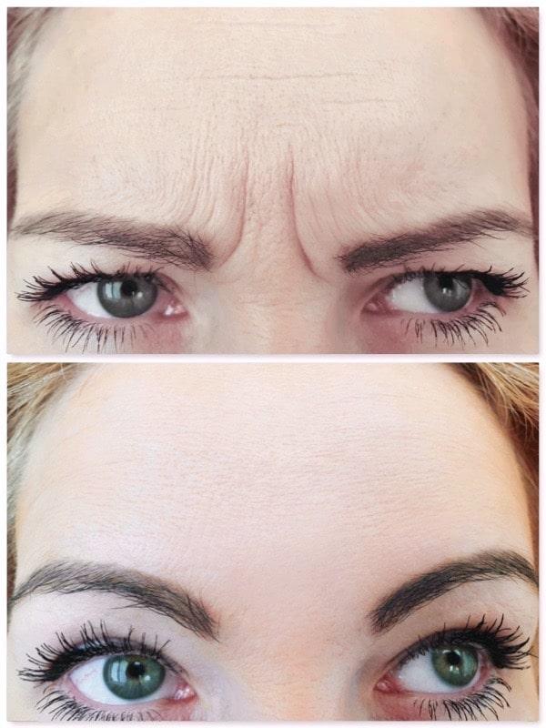 Rajeunissement par traitement des rides frontales et du lion chez une femme par injections de Botox©
