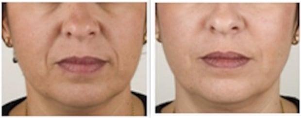 Traitement des joues et comblement des rides des sillons-nasogéniens (Téosyal°) chez une femme
