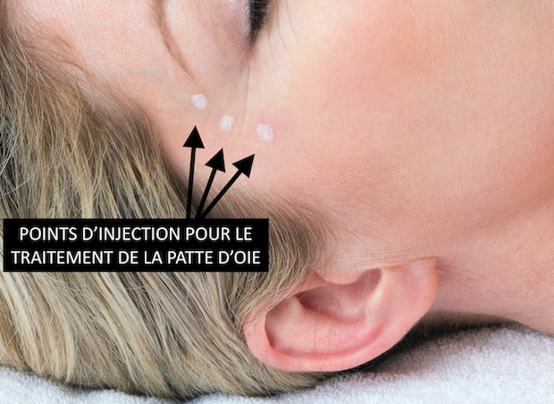 Points d'injection du Botox permettant supprimer les rides de la patte d'oie