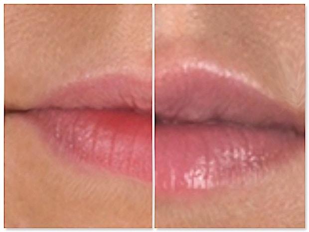 Résultat avant-après d'une injection d'acide hyaluronique pour la correction de lèvres trop fines