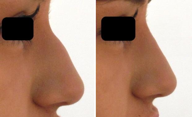 Résultats avant-après d'une rhinoplastie médicale par injection d'acide hyaluronique au niveau des dépressions du nez