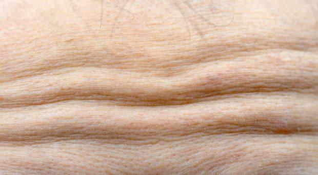 Rides du front pouvant être atténuées par les injections de Botox©