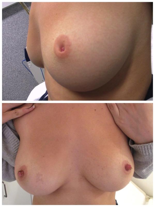 Résultat d'une opération de correction de mamelons ombiliqués à une semaine