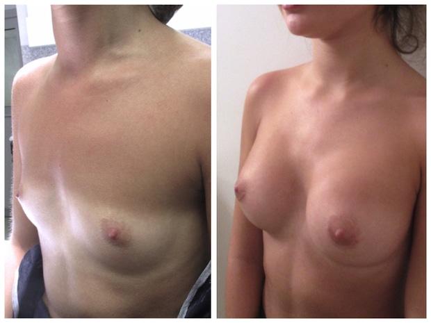 Augmentation mammaire par implants de 260cc permettant de passer d'un bonnet A à un bonnet B