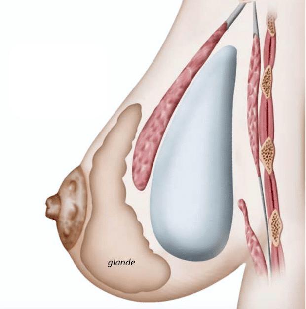 Schéma d'une disposition en Dual Plan d'une prothèses mammaire ronde prenant la forme d'une goutte d'eau