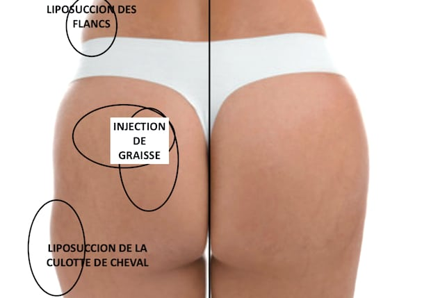 Zones traitées par lipoaspiration et zones d'injection pour le lipofilling des fesses