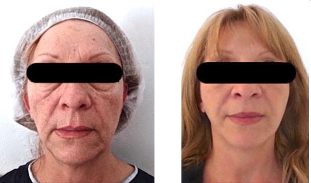 Injection de graisse au niveau du visage par lipofilling completant un lifting cervico-facial