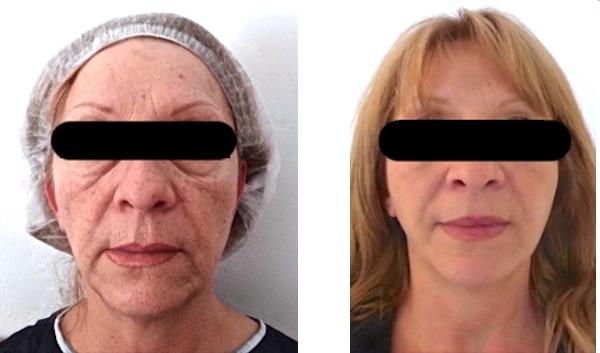 Résultat d'un lipofilling du visage associé à un lifting superficiel