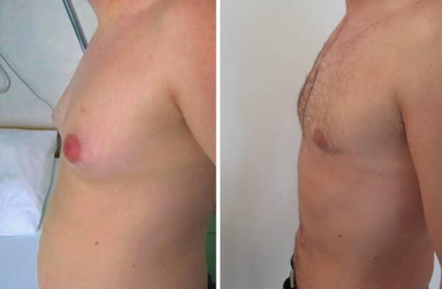 Résultat avant-après d'une opération traitant une gynécomastie mixte (glandulaire et graisseuse)
