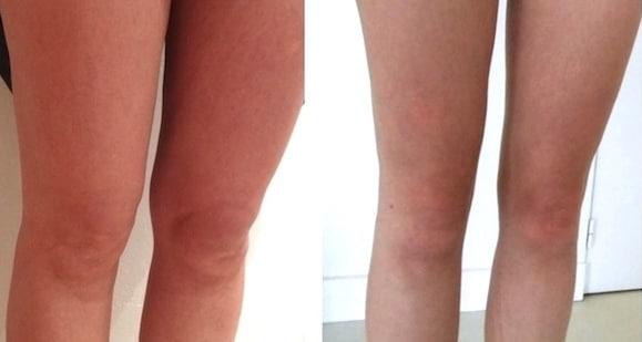 Zones fréquemment prélevées pour une injection de graisse par lipofilling du visage