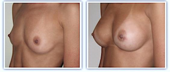Photos avant-après d'une pose classique d'implants