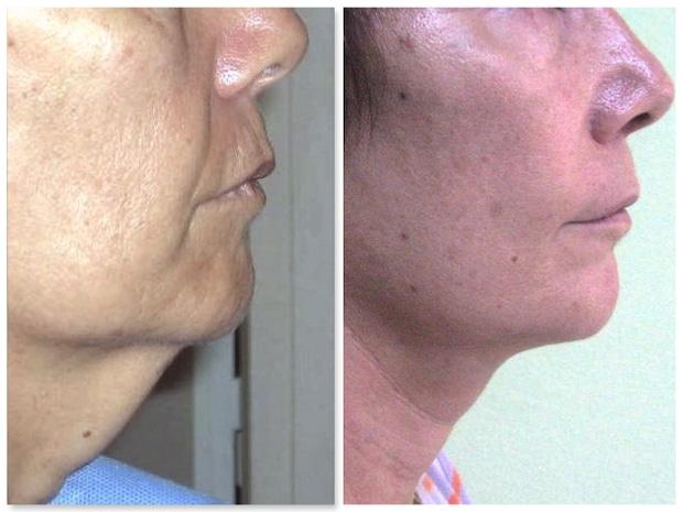 Double menton cutané traité dans le cadre d'un lifting cervico-facial