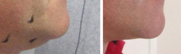 Double menton chez un homme traité par liposuccion du cou