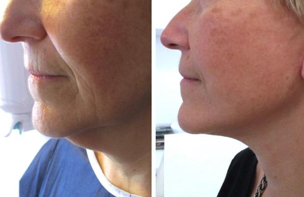Autre résultat d'une opération du double menton par lifting du cou avec lipoaspiration
