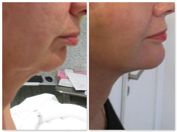 Double menton traité par génioplastie d'avancée (par implant) associée à un lifting cervical