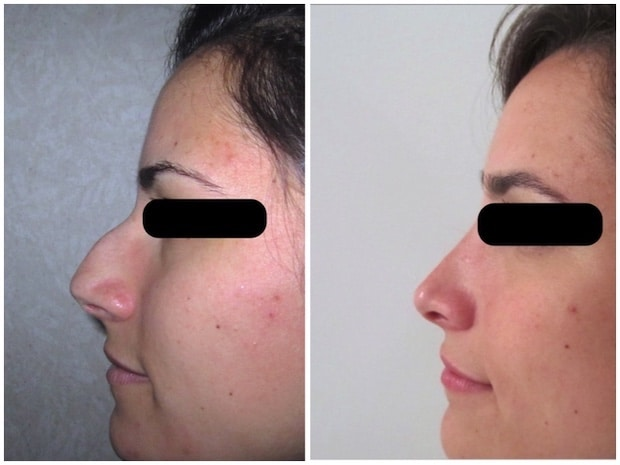 Photos avant-après d'une opération de la pointe du nez associée à un retrait de la bosse