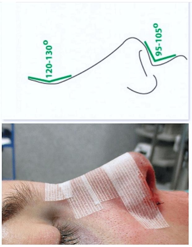 Une opération esthétique du nez doit laisser une pointe nasale en bonne proportion