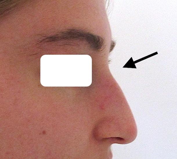L'acide hyaluronique est un produit de comblement qui peut atténuer bosse du nez sans opération