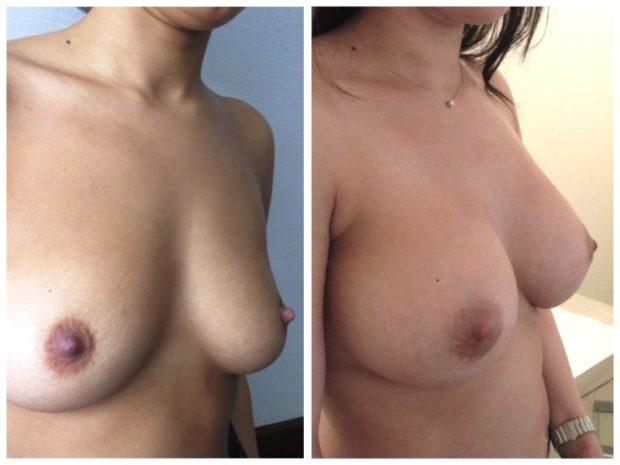 si la technique est rigoureuse et le choix des implants raisonnable, les complications d'une augmentation mammaire sont rares