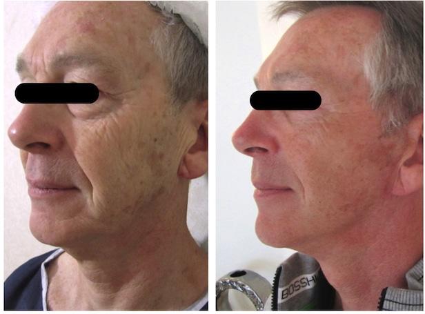Lifting du visage et blepharoplastie supérieure et inférieure chez un homme