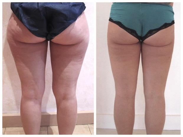 Résultat d'une liposuccion des cuisses qui a traité les graisses localisées résiduelles consécutives à un amaigrissement.
