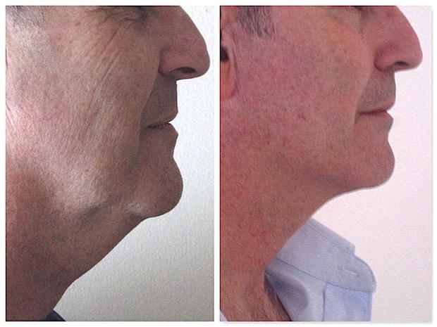 Résultat d'un lifting du visage et du cou avec liposuccion chez un homme traitant un double menton